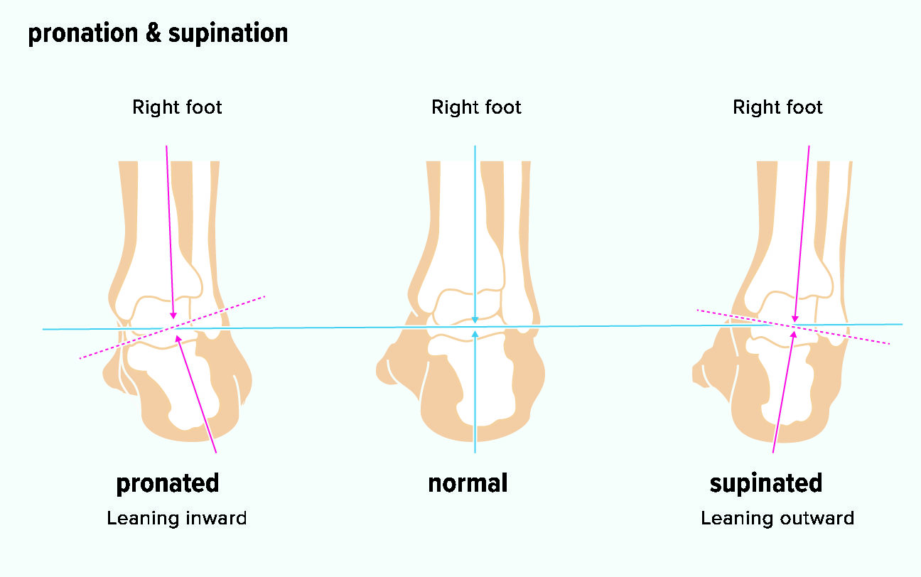 Foot shapes of over pronator and supinator